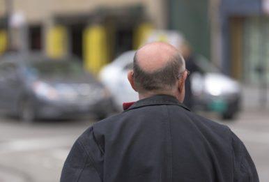 hair loss pollution